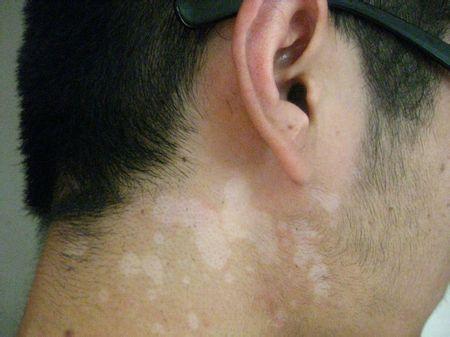 汗斑 皮肤美容中心 南京华美医疗美容医院